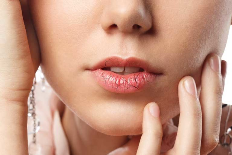 Handy year-round tips for dry skin and chapped lips