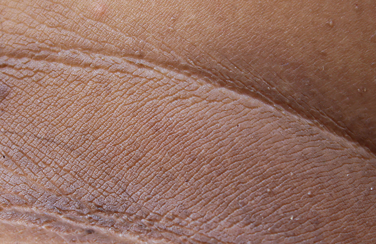 You have dark areas on your skin
