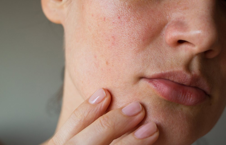 Sebum is layering itself all over your face